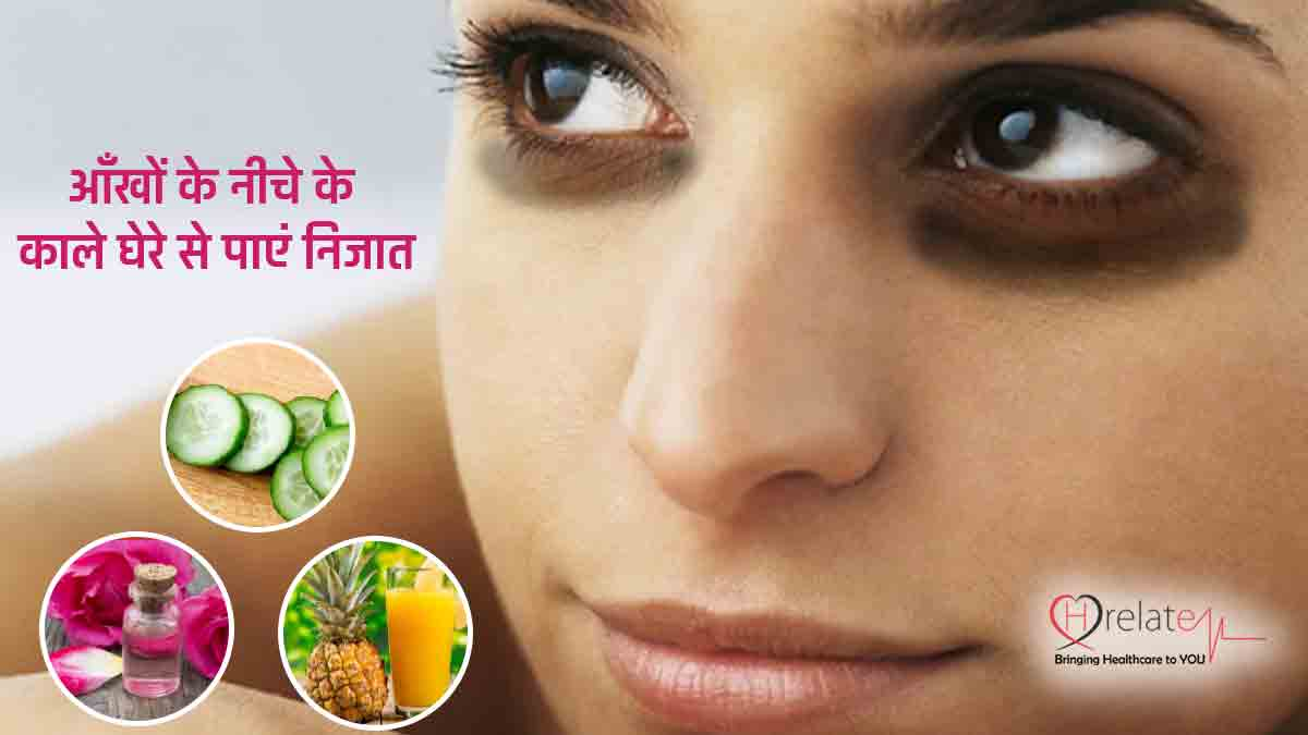 How To Remove Dark Circles In Hindi