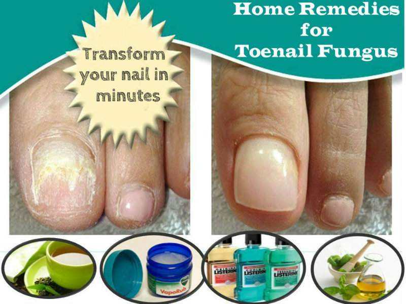 Homemade treatment for fungal nail infection