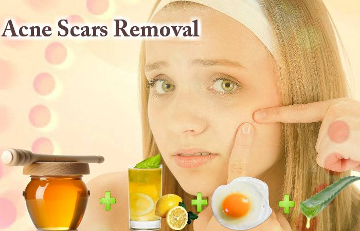 Acne Scars Removal