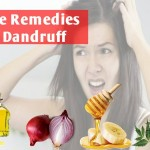 Dandruff Treatment in Hindi: Paiye Baalo ki Khoi Hui Khubsurti