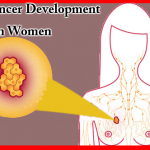 Main Causes of Breast Cancer Development in Women