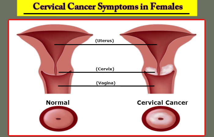 detecting cervical cancer symptoms in females, Skeleton