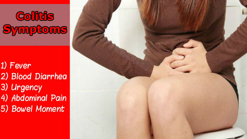 Colitis Symptoms