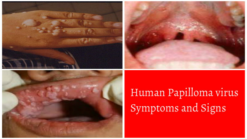 human papilloma virus (hpv): a common skin disease | hrelate, Skeleton