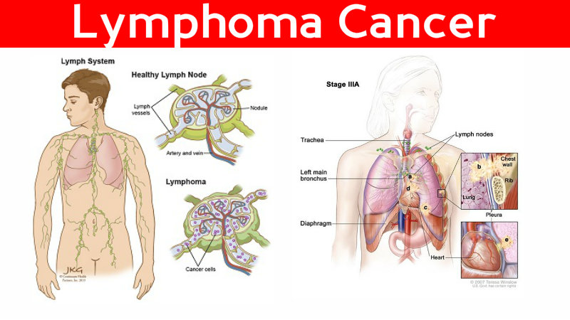 a report on lymphoma Patients and methods this retrospective study was based on 15 patients with extranodal nk/t-cell lymphoma, nasal type, managed between 1990 and 2009.