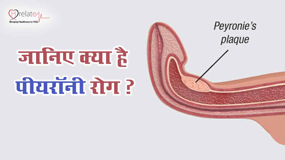 Peyronie Disease In Hindi