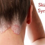 Identify Skin Cancer Symptoms at Very First Stage