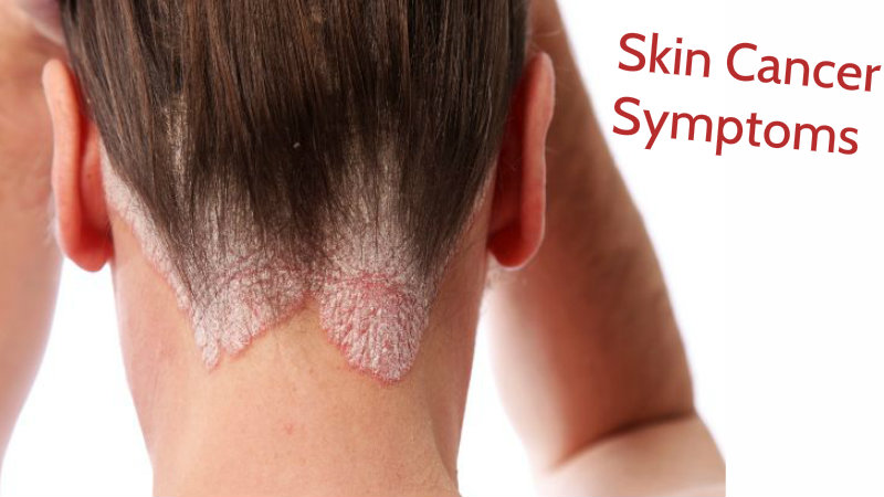 Skin Cancer Symptoms