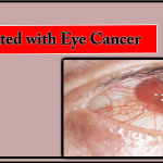 Understand the Risk Factors Associated with Eye Cancer