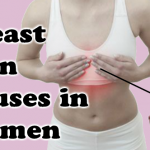 Understand the Related Breast Pain Causes in Women