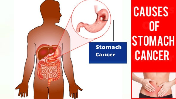 Causes of Stomach Cancer