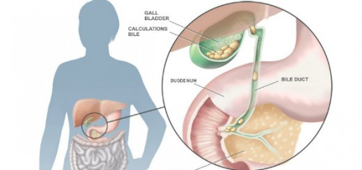 Gallstones Symptoms
