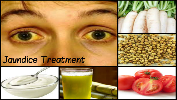 Jaundice Treatment in Hindi