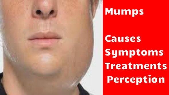 mumps treatment with steroids