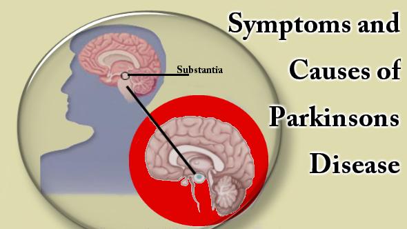 Parkinsons -Disease