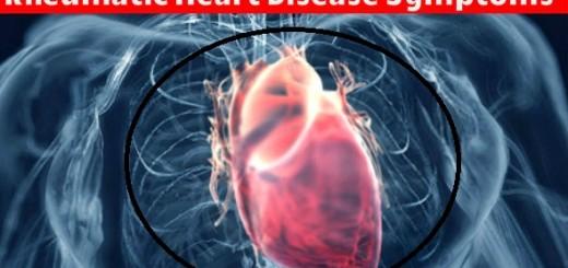Rheumatic Heart Disease Symptoms