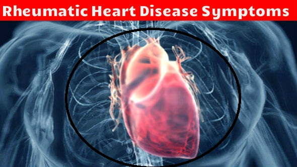 Rheumatic Heart Disease Symptoms