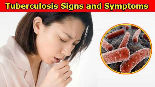 Tuberculosis Signs and Symptoms