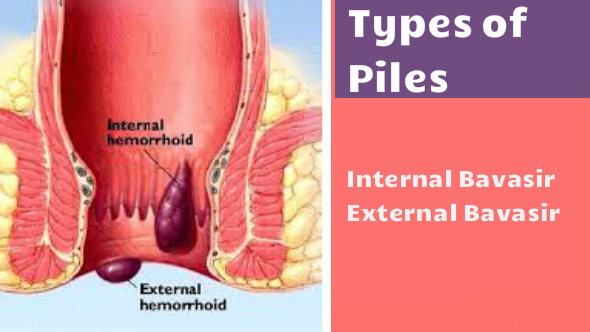 Types of Piles - Piles Treatment in Hindi