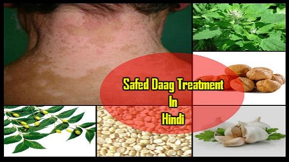 Safed Daag Treatment In Hindi