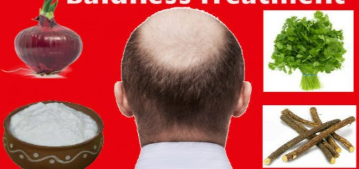 Baldness -Treatment
