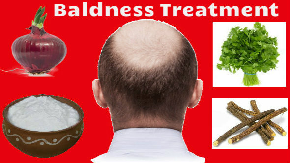 Baldness -Treatment