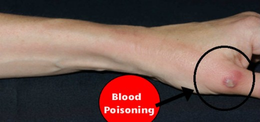 Blood Poisoning