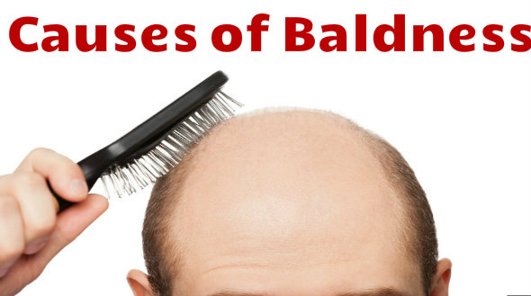 Causes of Baldness