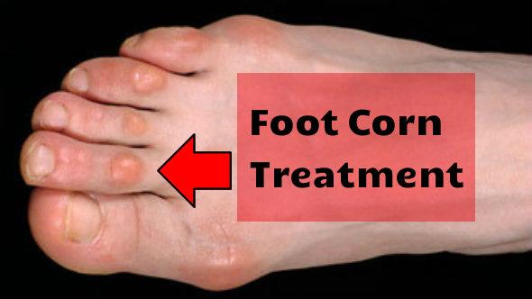 Foot Corn Treatment