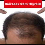 Aaiye Jane Hair Loss from Thyroid ke Baare Mai