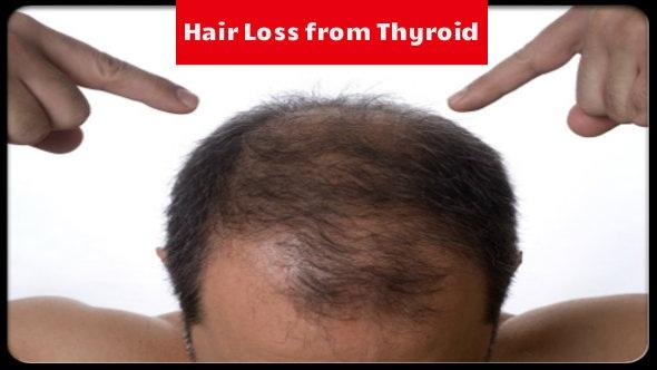 Hair Loss from Thyroid