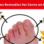 Home Remedies for Corns, Iss Skin Problem ke Liye Upay