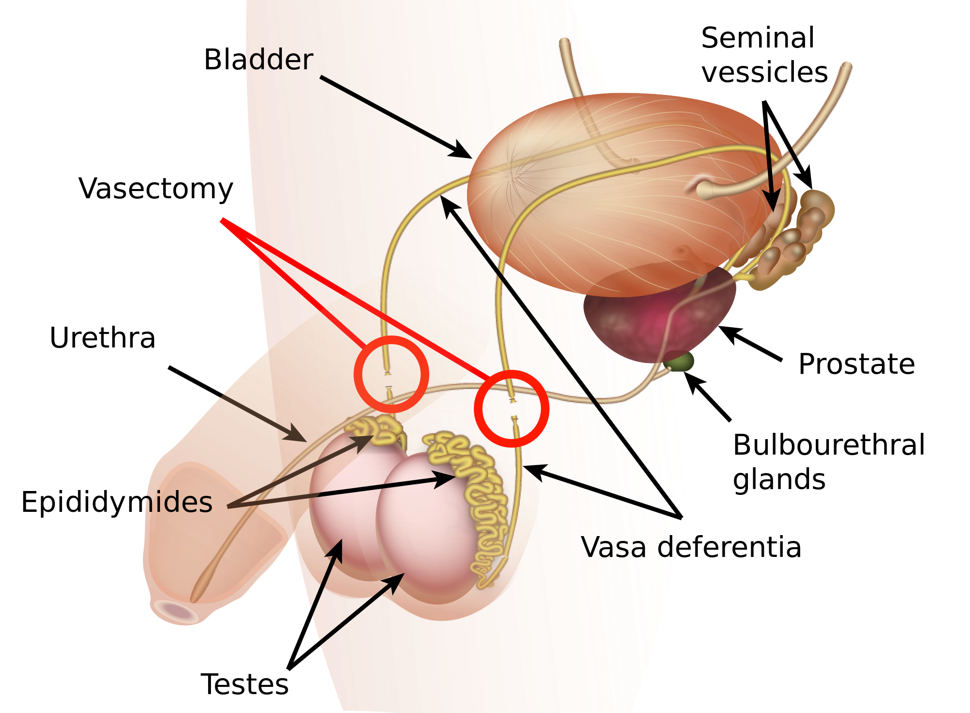 Nasbandi - Male Vasectomy