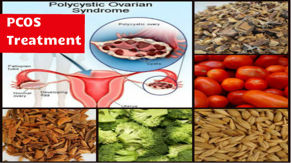 PCOS Treatment in Hindi