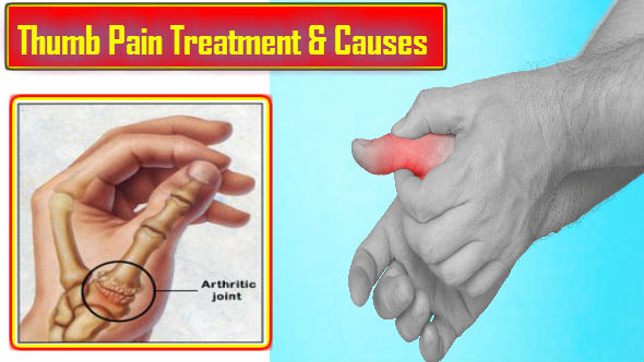 Thumb Pain Treatment and Causes