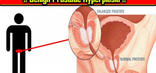 Benign Prostatic Hyperplasia ke Symptoms, Treatment aur Causes