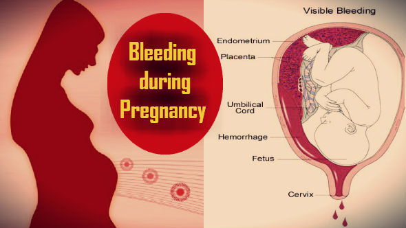 Bleeding during Pregnancy in Hindi