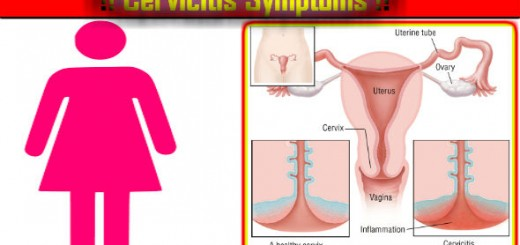 Cervicitis Symptoms in Hindi