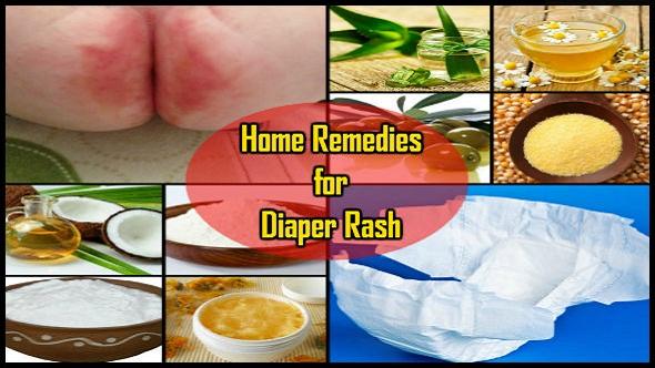 Home Remedies for Diaper Rash: Aapka Baccha Rahe Swasth