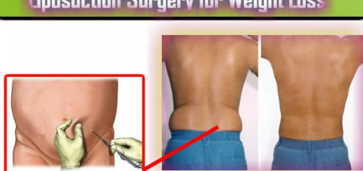 Liposuction Surgery for Weight Loss