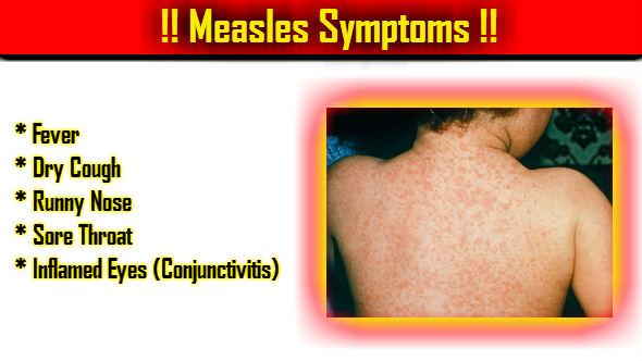 Measles Symptoms-Khasra