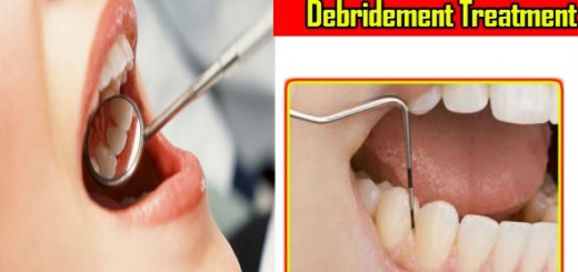 Debridement Treatment in Hindi