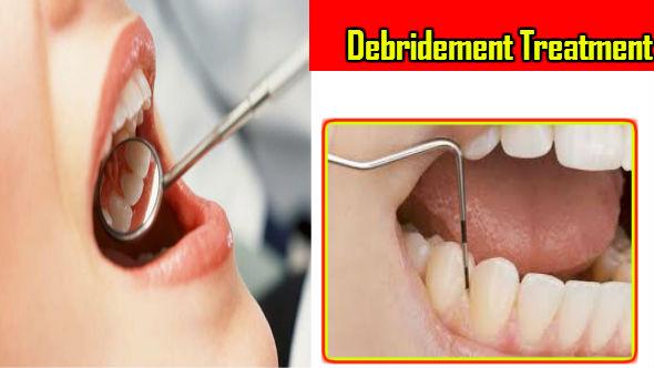 Debridement Treatment in Hindi