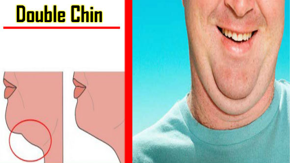 How to Remove Double Chin