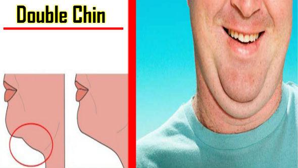 Double Chin in Hindi
