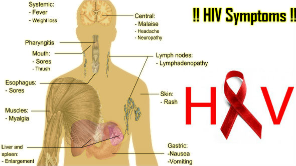 HIV Symptoms in Hindi
