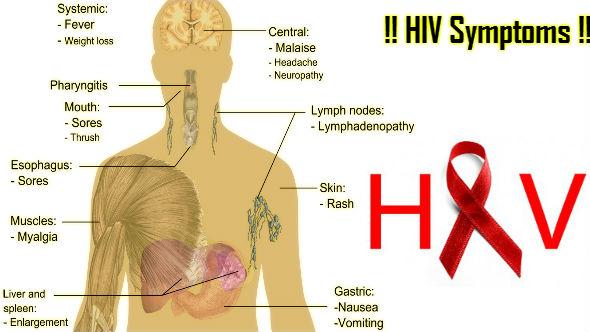 HIV Symptoms in Hindi