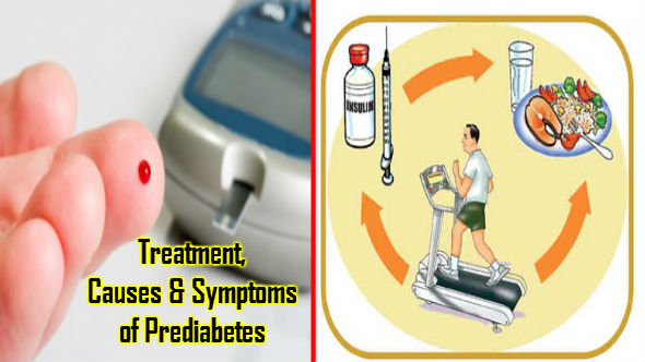 Treatment-Causes-Symptoms-of-Prediabetes