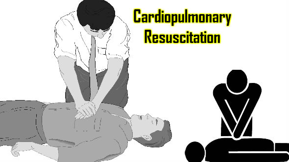 Cardiopulmonary Resuscitation Process1