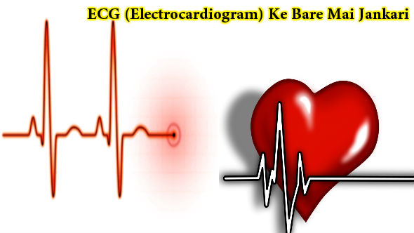 ECG-Electrocardiogram